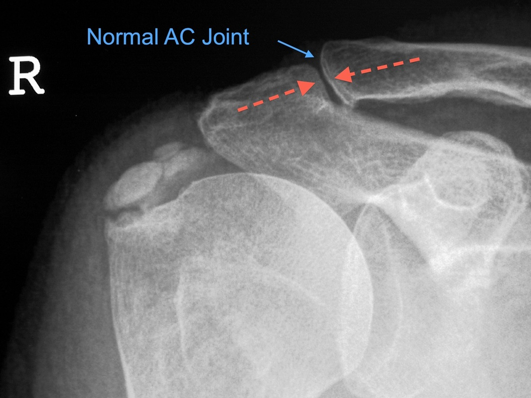 Acromioclaivicular Joint Dislocation Dr Terry Hammond